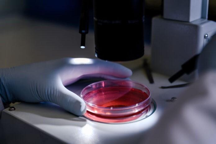 Bioterapia enzymy